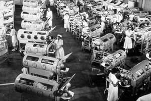 "polio prevention gpei in the 1940s and 1950s people bulbar polio were immobilized inside ""iron lungs"" huge metal cylinders that operated like a pair of bellows to"