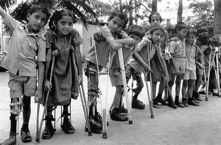 history of polio – gpei, Skeleton